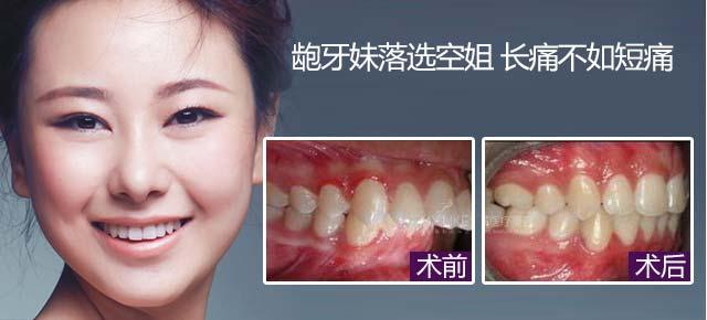 【真人案例】矫正牙齿 改写人生